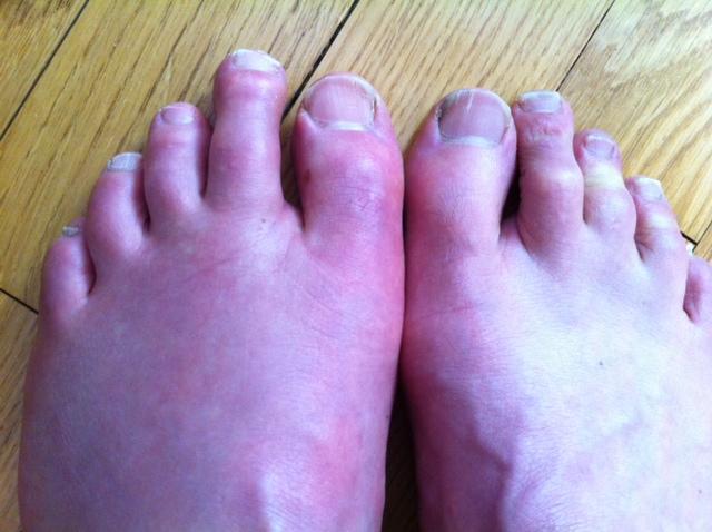 pied gauche gonfle et douloureux
